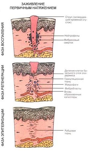 Послеоперационный шов не заживает: покраснение, уплотнение, нагноение, мокнет, чешется, болит. Лечение