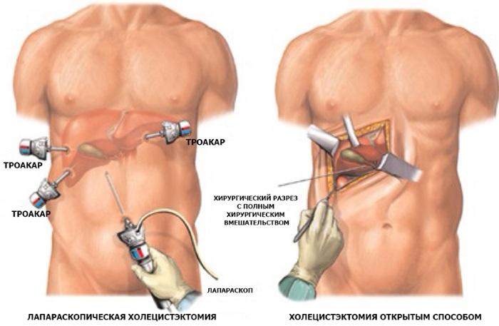 Пульсация в животе без боли, с болью. Причины у женщин, мужчин возле пупка, справа, слева