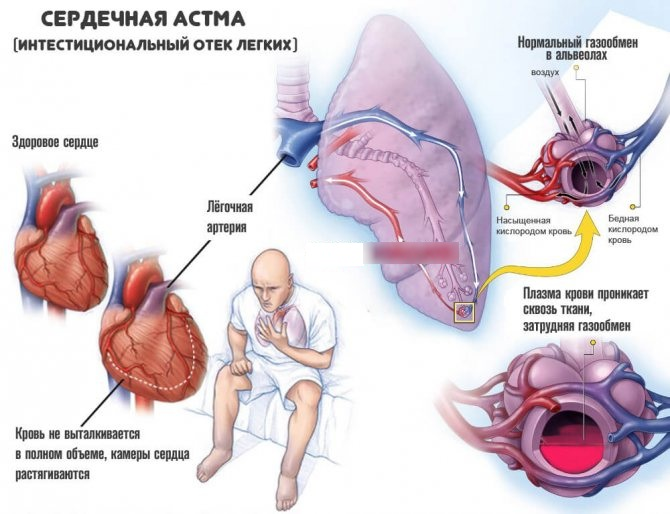Сердечная астма. Симптомы у взрослых, детей, лечение, клинические рекомендации