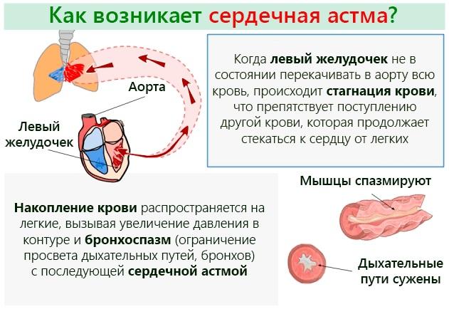 Одышка при сердечной недостаточности. Симптомы и лечение