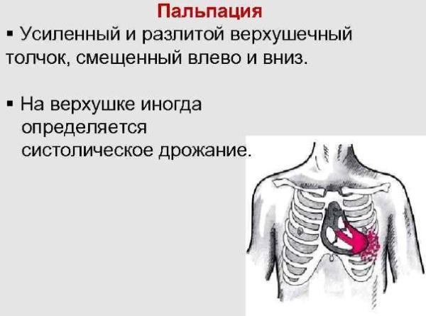 Верхушечный толчок. Норма у детей, при гипертонической болезни, гипертрофии желудочка, ИБС