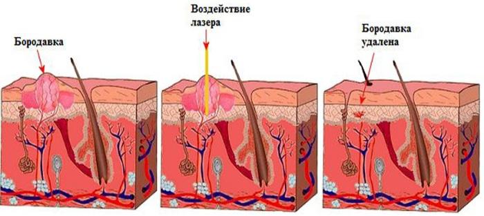 Радиоволновое удаление новообразований кожи, дефектов. Что это такое