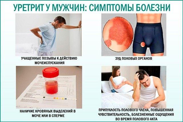 Жжение в уретре в головке у мужчин с выделениями и без. Причины и лечение
