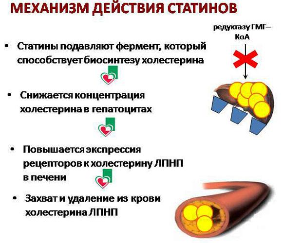 Атеросклероз сосудов сердца. Симптомы и лечение у пожилых людей, причины
