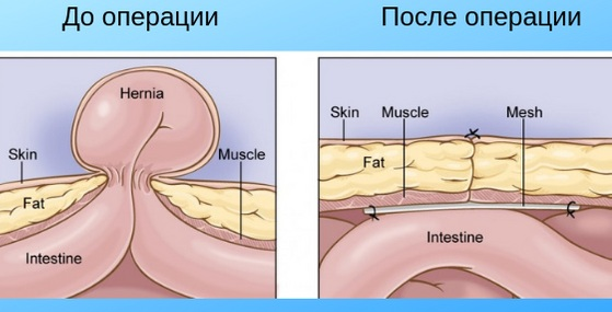 Дифференциальная диагностика пупочной грыжи. Таблица, фото у взрослых, детей