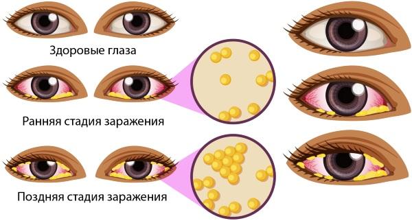 Глазные капли для новорожденных от нагноения. Цены, отзывы