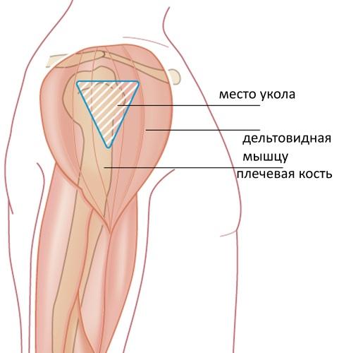 Как делать уколы в бедро правильно внутримышечно, самому себе, куда колоть. Фото, видео