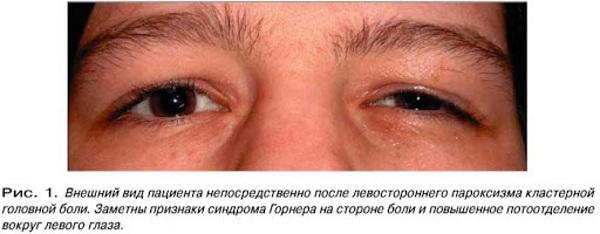 Кластерные головные боли. Что это такое, причины, симптомы, лечение