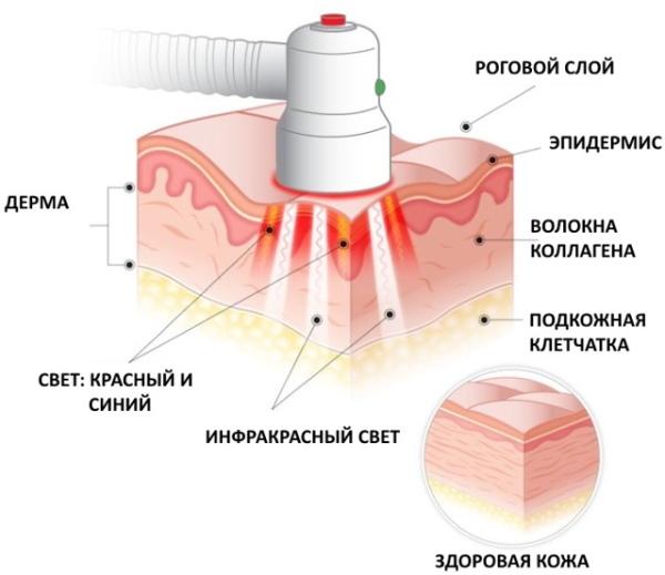 PUVA therapy (ПУВА-терапия). Что это такое от псориаза, алопеции, витилиго, расшифровка. Цена, отзывы