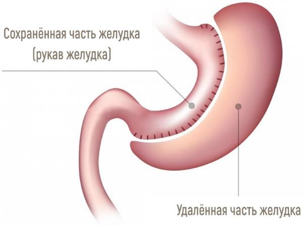Бариатрическая операция на желудке. Как делается, плюсы, минусы, цена