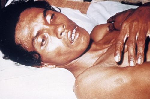 Холера у человека. Признаки, симптомы, причины и лечение