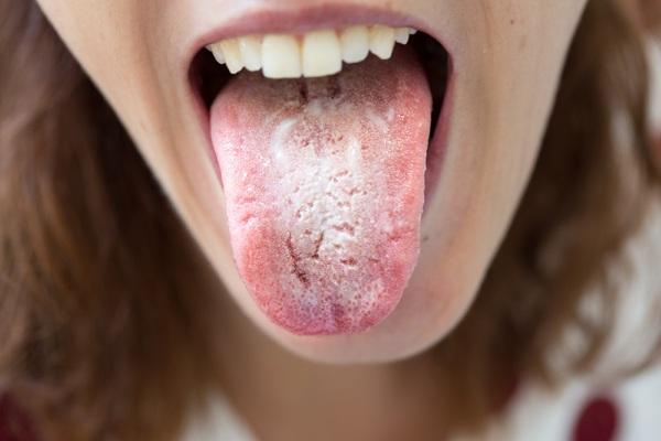 Кандидоз во рту. Фото, симптомы и лечение у взрослых, детей