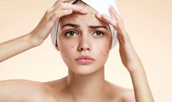 Мелкие гнойные прыщики на лице у женщин. Причины и лечение, как избавиться
