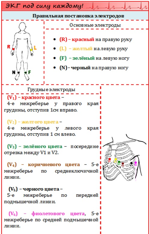 Наложение электродов при ЭКГ. Схема по цветам, алгоритм, фото