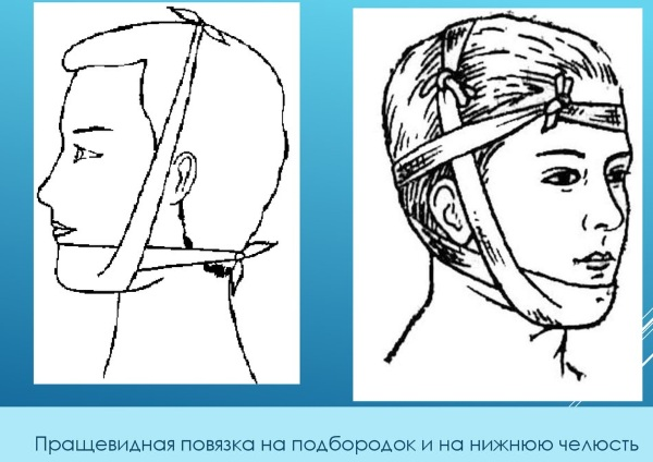 Пращевидная повязка на нос. Алгоритм наложения, фото, видео