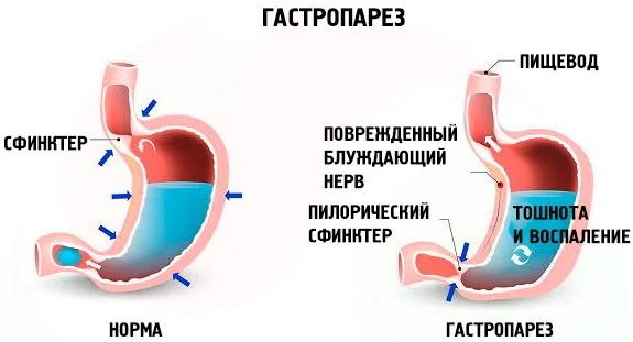 Проблемы с желудком. Симптомы, психосоматика, лечение, что можно кушать