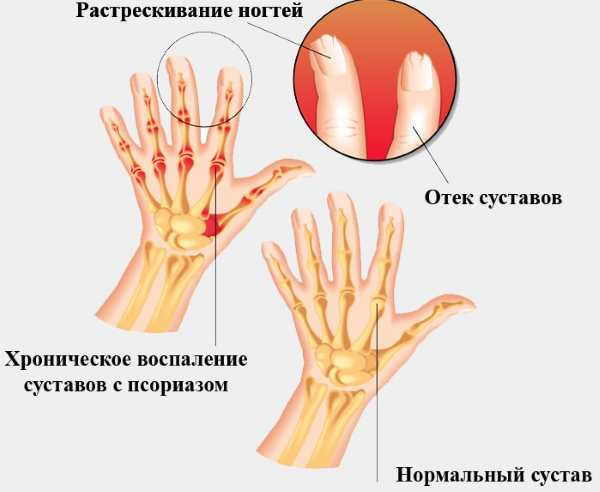 Псориатический артрит. Рентгенологические признаки, методы лечения, кто лечит, клинические рекомендации