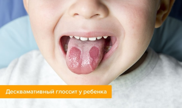 Щиплет язык. Причины и лечение у взрослого, ребенка