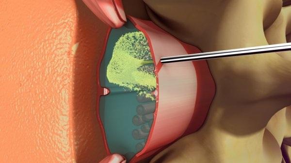 Спинальная анестезия при кесаревом сечении. Отзывы, противопоказания, последствия