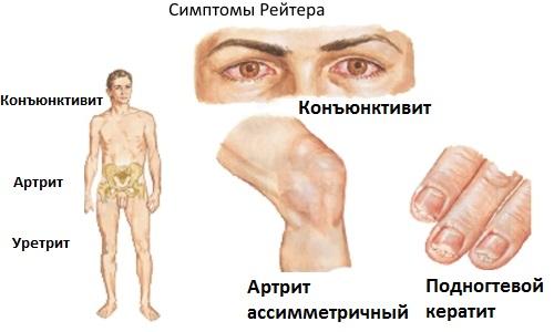 Сводит скулы и челюсть. Причины и лечение, что делать