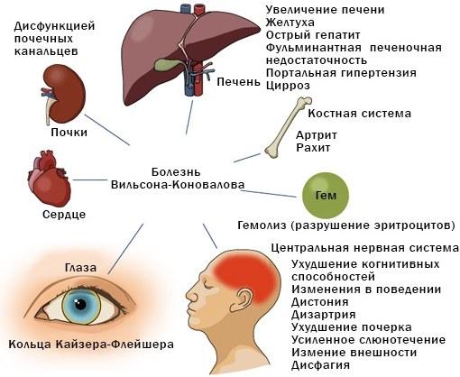 Болезнь Вильсона-Коновалова. Лечение, диагностика, клинические рекомендации