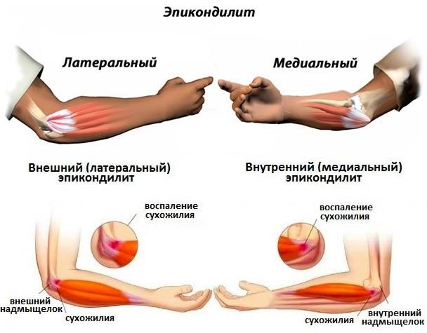 Болят локти рук. Причины и лечение