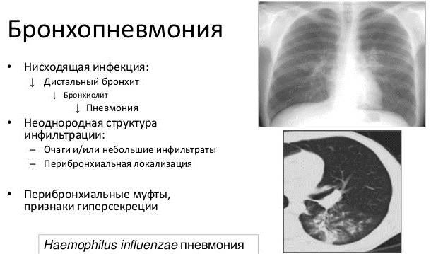 Бронхопневмония у взрослых. Симптомы, что это такое, лечение