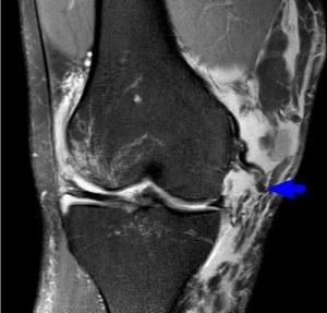 Гусиная лапка коленного сустава. Что это такое, анатомия, лечение