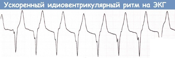 Идиовентрикулярный ритм на ЭКГ. Что это значит, фото, причины и лечение
