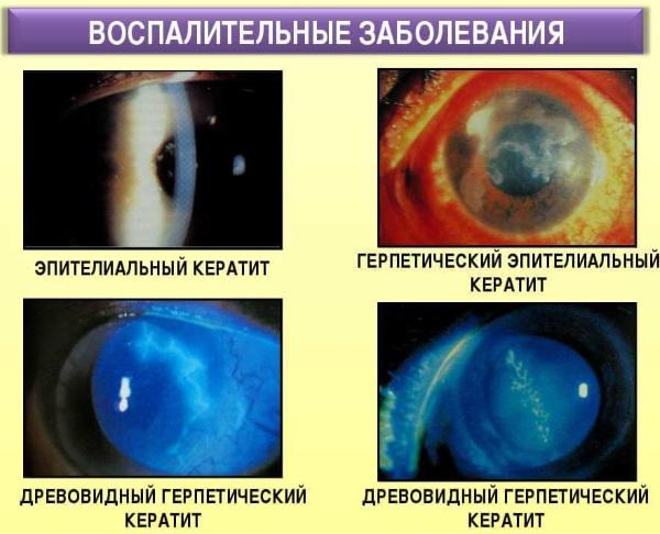 Кератиты. Классификация, диагностика, лечение, симптомы