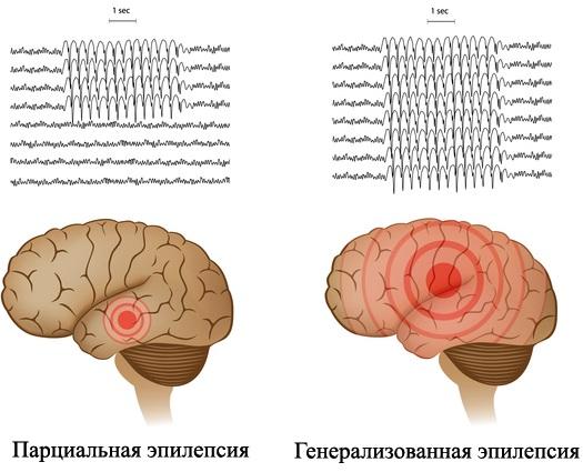 Купирование эпилептического статуса. Средства, клинические рекомендации