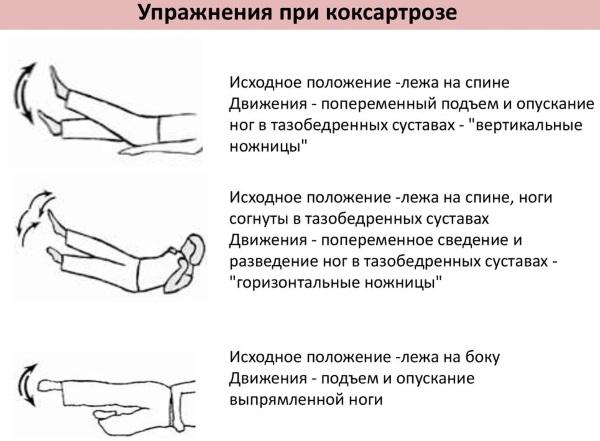 ЛФК (лечебная физкультура) для тазобедренного сустава для выполнения дома взрослому, ребенку