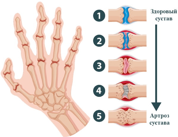 Мышечная боль во всем теле. Причины и лечение