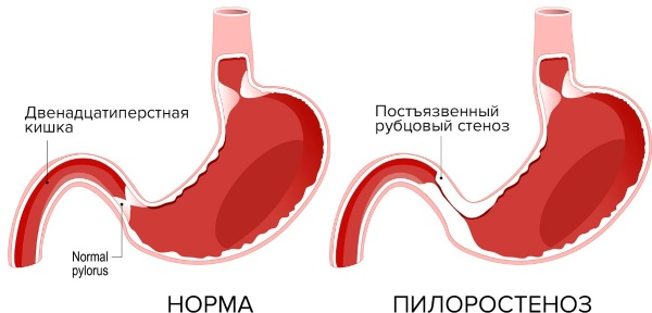 Непроходимость желудка. Симптомы и лечение у взрослых