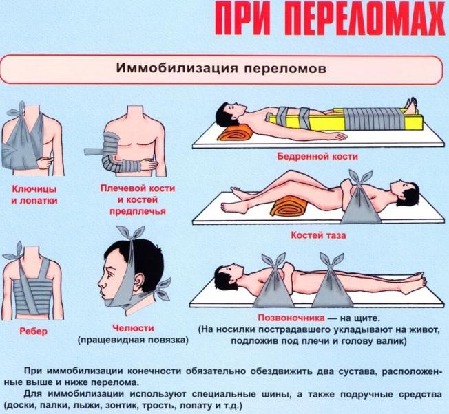 ПМП (первая медицинская помощь) при открытом переломе костей конечности