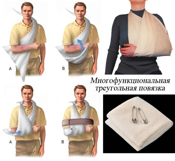 Повязка косынка на руку при переломе руки, ключицы, локтя, вывихе плеча из платка, бинта