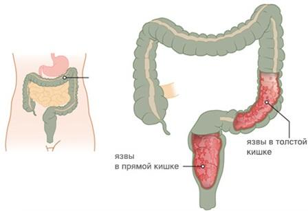 Сигмоидит. Симптомы и лечение у женщин, что это такое, диета