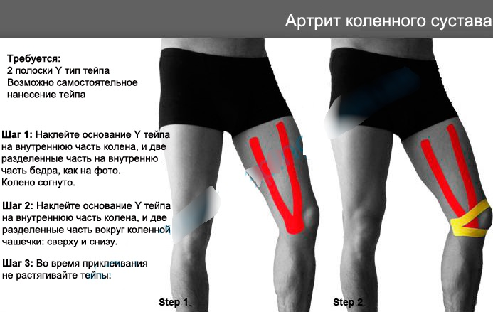 Тейп на колено. Как наложить пошагово, схема для боковой связки, мениска