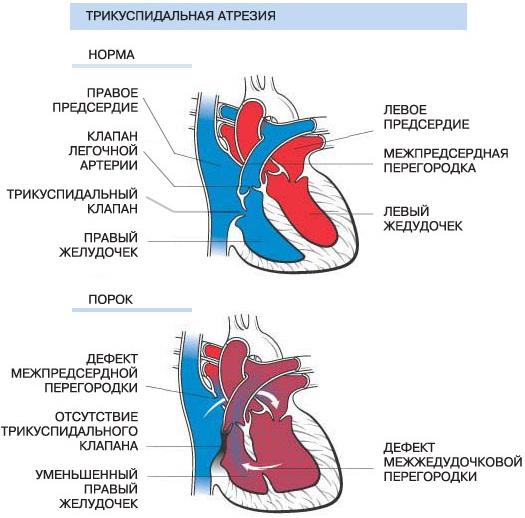 Трехстворчатый клапан сердца. Где расположен, между чем, анатомия