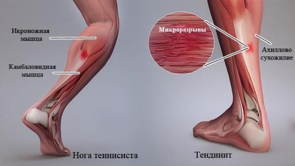 Воспаление ахиллового сухожилия. Причины и лечение, мази