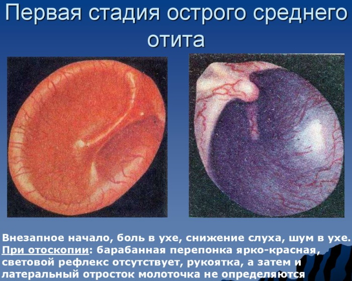Воспаление среднего уха. Лечение в домашних условиях, препараты, симптомы у взрослых