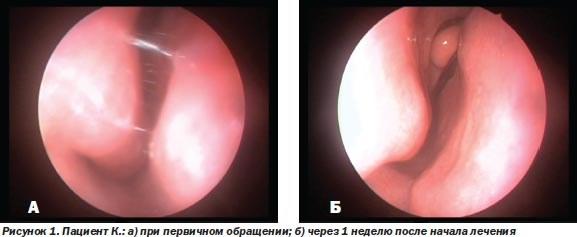 Зависимость от капель для носа. Как избавиться, как называется, лечение