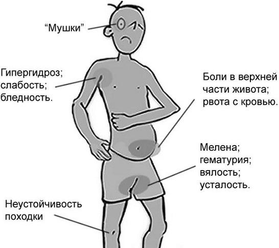 Желудочное кровотечение. Симптомы у взрослых, причины, лечение
