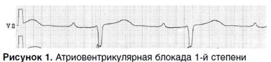 АВ блокада 1-2-3 степени на ЭКГ Мобитц. Что это, причины, лечение