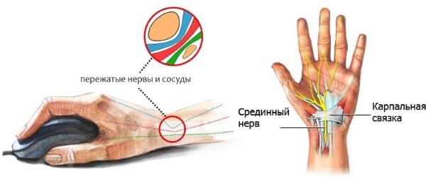 Боли в запястье правой руки. Причины и лечение