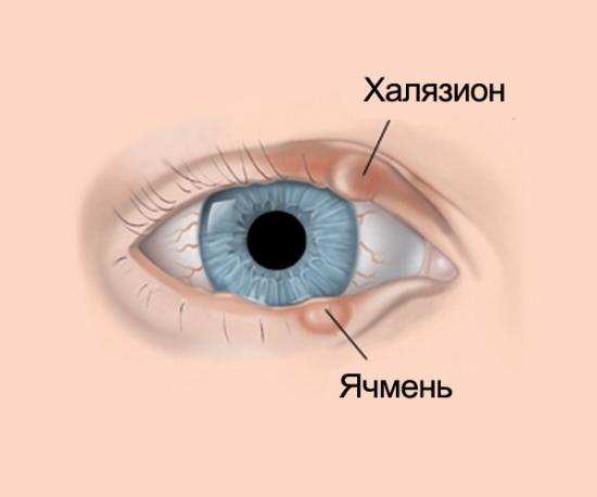 ДексаТобропт глазные капли. Инструкция по применению, цена, отзывы