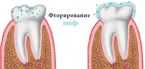 Гигиеническая чистка зубов профессиональная. Отзывы, цены