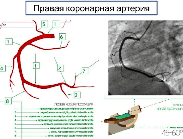 Коронарные артерии сердца. Схема, анатомия, что это такое