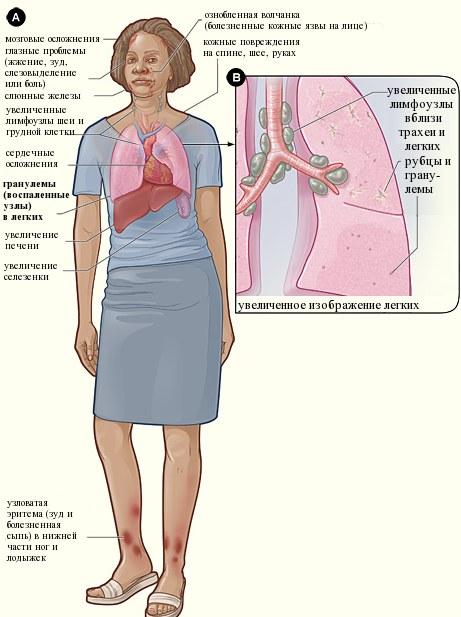 Ночной кашель. Причины и лечение у взрослого, как остановить