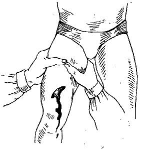Пальцевое прижатие бедренной артерии. Где, как выполняется, алгоритм